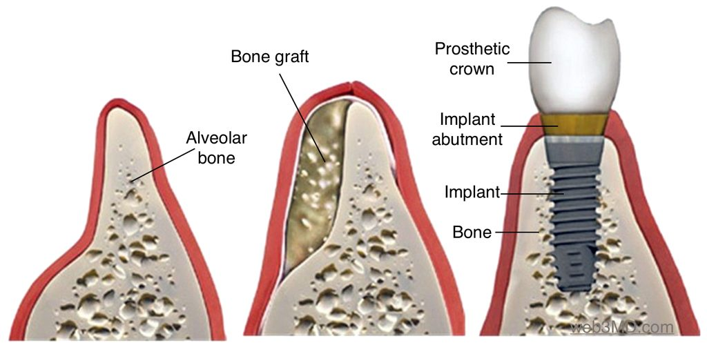 a bone graft to create an area suitable for implants.