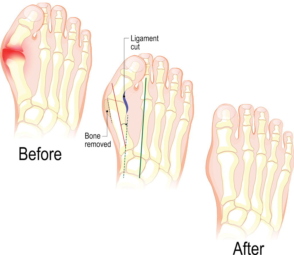 Bunion surgery: Bunionectomy at Southern Indiana Surgery Center - Bloomington