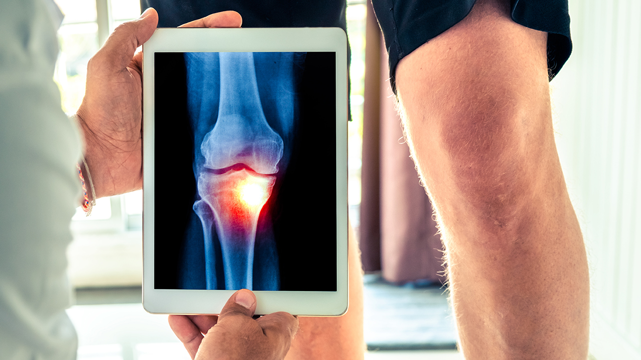 Orthopedic knee and shoulder surgery or orthopedics at Southern Indiana Surgery Center (SISC)